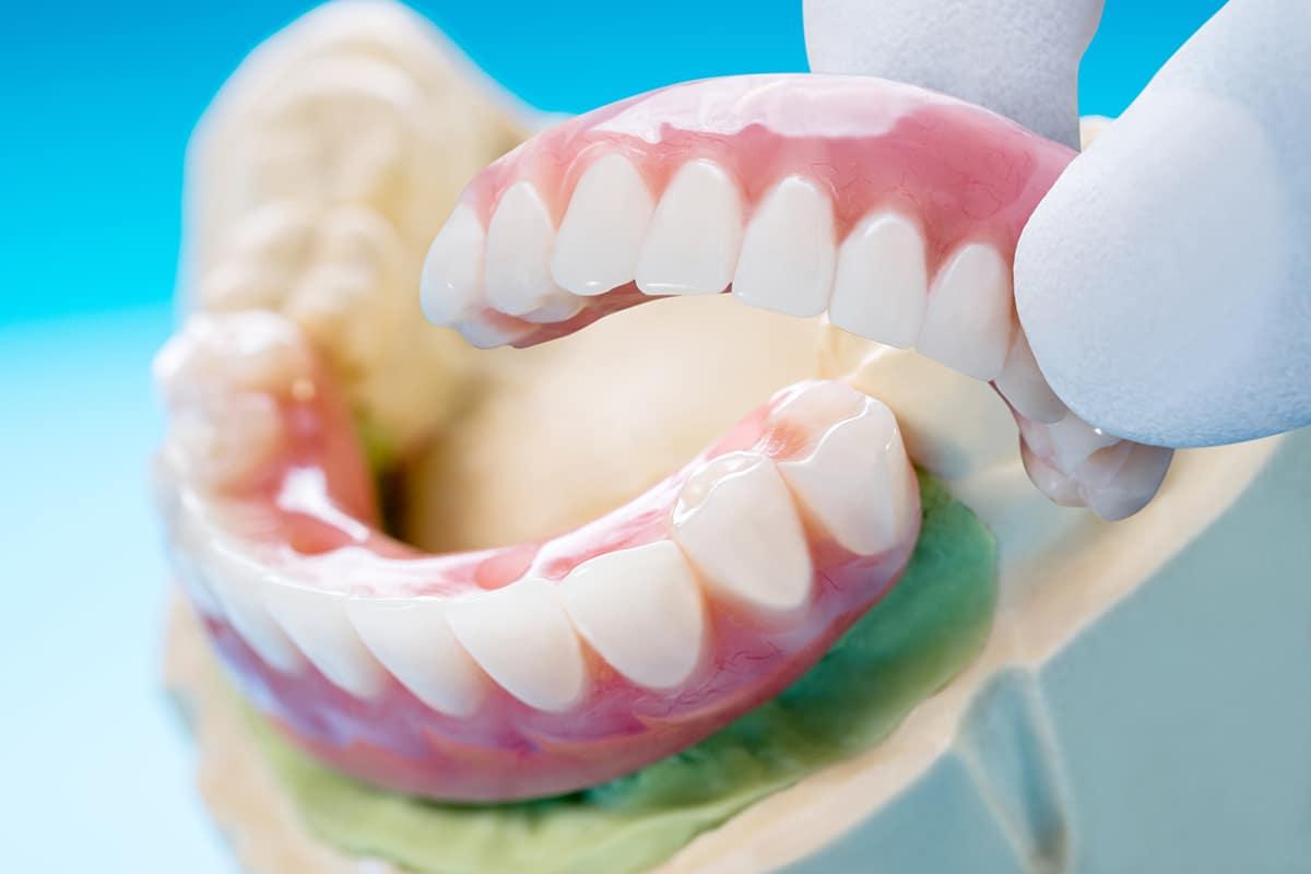 יישור שיניים שקוף בכרמיאל